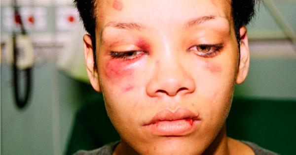 קנאה, אלימות ותהילה: כריס בראון מביא את הצד שלו על מערכת היחסים עם ריהאנה