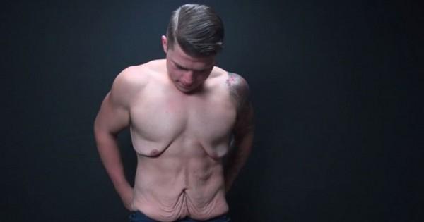 הבחור שגאה בעודפי העור שלו