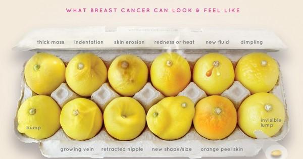 קמפיין הלימונים הגאוני להגברת המודעות לסרטן השד