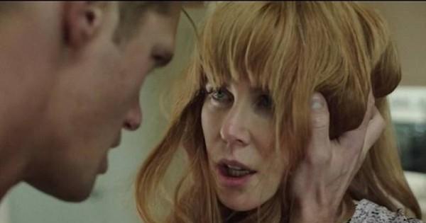 ניקול קידמן מודה: הכאב בצילום סצינות כאישה מוכה לא נגמר בסוף הצילומים