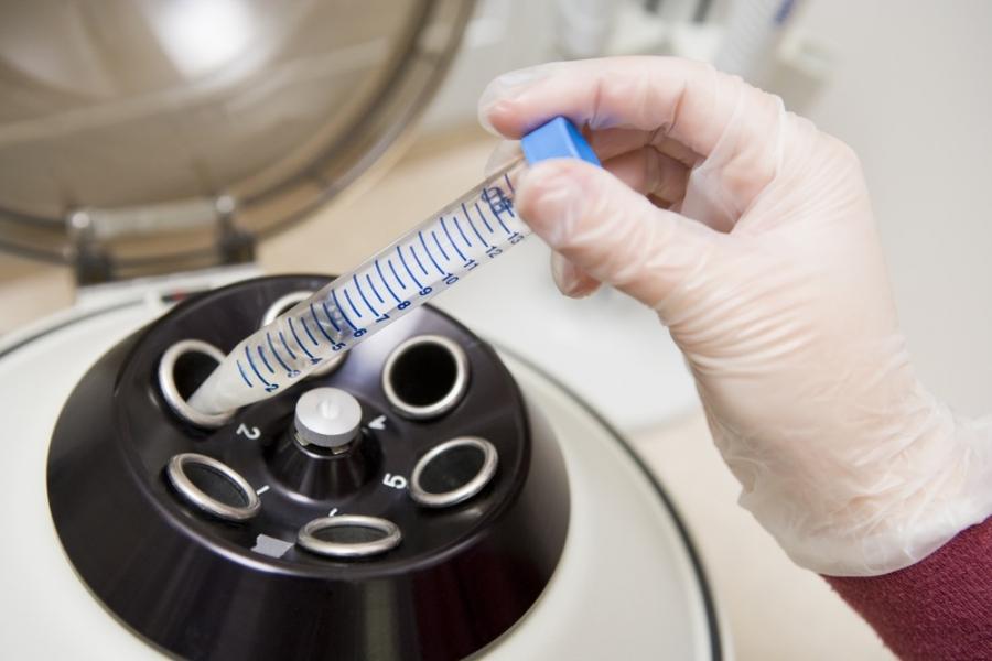 MAR-тест спермы