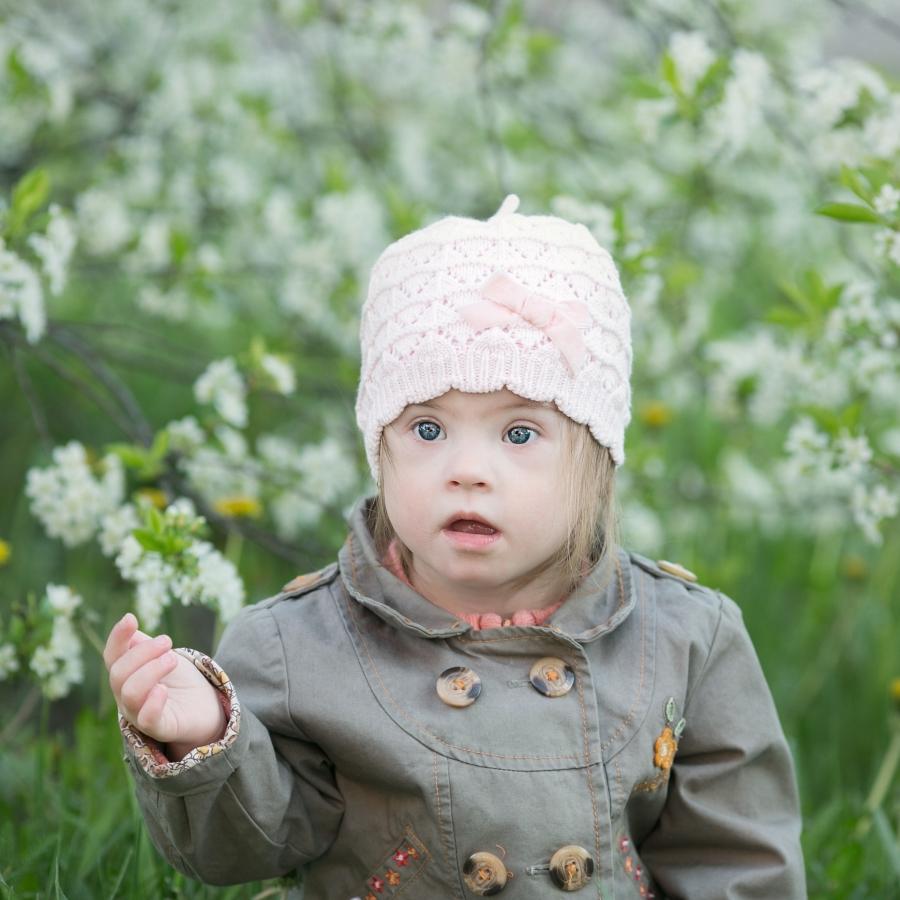 ילדה עם תסמונת דאון