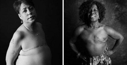 אני עדיין אישה למרות שאיבר מסוים בגוף שלי חסר: פרויקט צילום מרגש