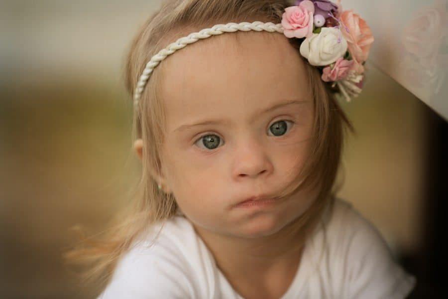 באיסלנד לא נולדים יותר תינוקות עם תסמונת דאון