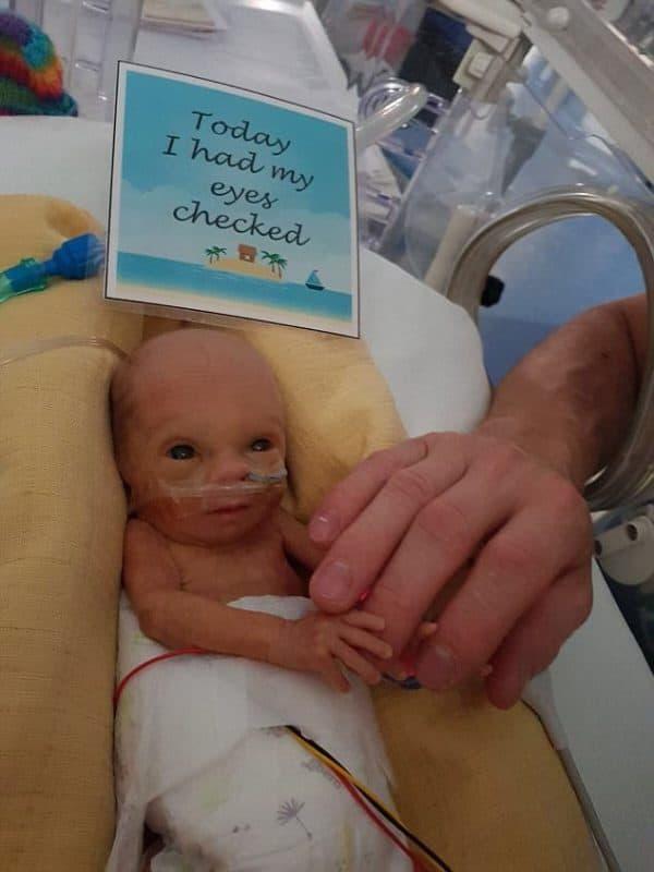 פג שנולד בשבוע 28: בדיקת עיניים