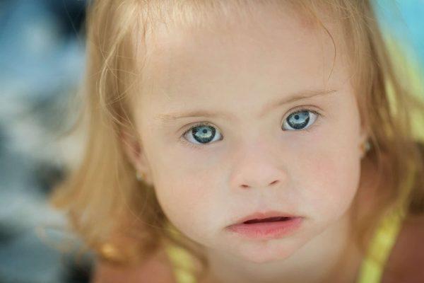 תסמונת דאון: חוק ניסה לאסור על הפלה של תינוקות עם תסמונת דאון