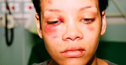 התמונה של ריהאנה עודדה את הזמרת קליס לעזוב את בעלה המתעלל