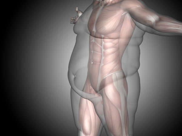 עליית מסת הגוף היא תוצר ישיר של השמנה. צילום: Shutterstock