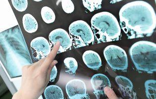 טרשת נפוצה: כל מה שצריך לדעת על המחלה שתוקפת יותר ויותר נשים