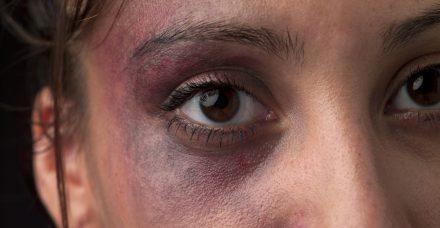 האם 'צדק מאחה' עבור נפגעות תקיפה מינית יגדיל את מספר המתלוננות?
