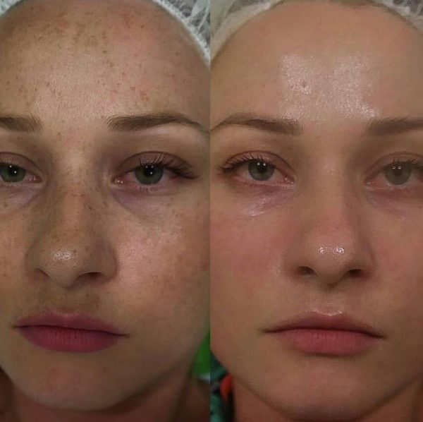 תמונות לפני ואחרי מהקליניקה של טניה אוהב שלום