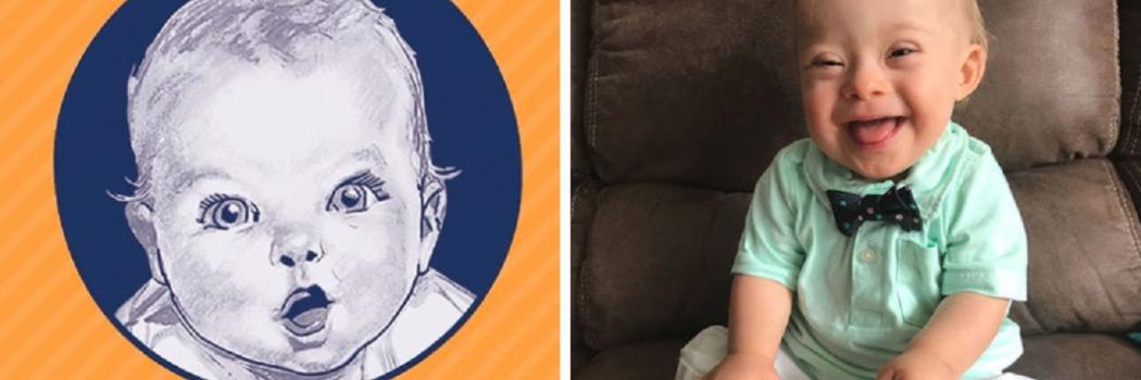 תינוק השנה של גרבר עם תסמונת דאון