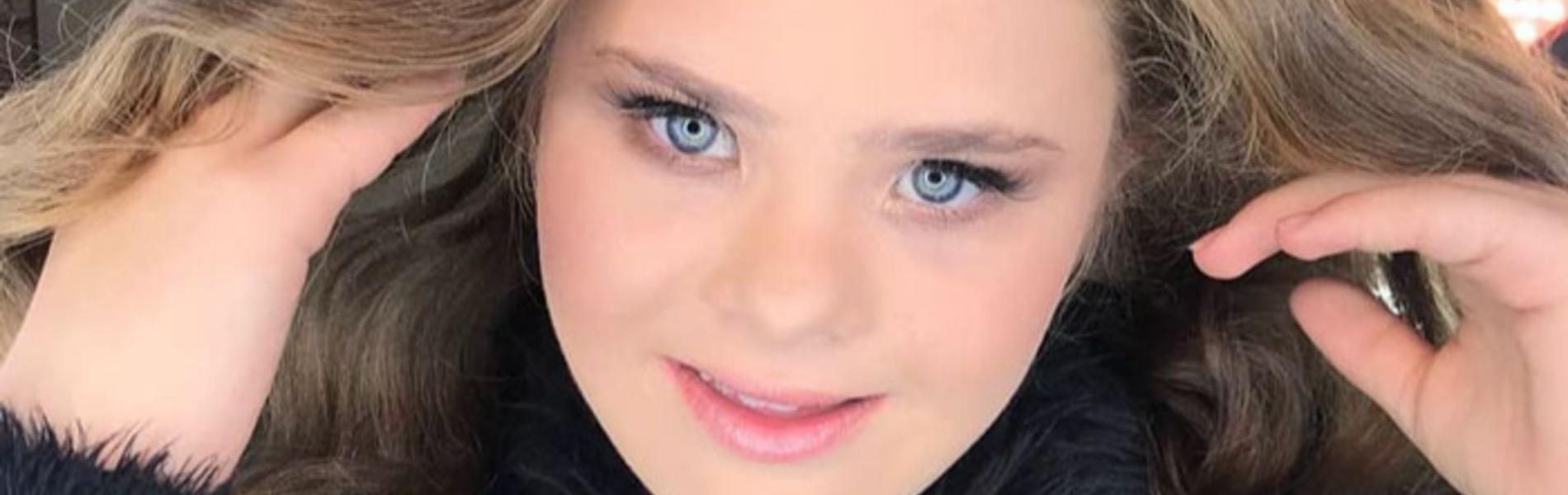 כוכבת חדשה בשמי הדוגמנות: צעירה עם תסמונת דאון