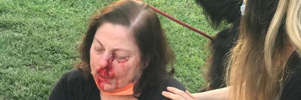 רונית ברק דקות אחרי תקיפתה ברמת החייל בתל אביב